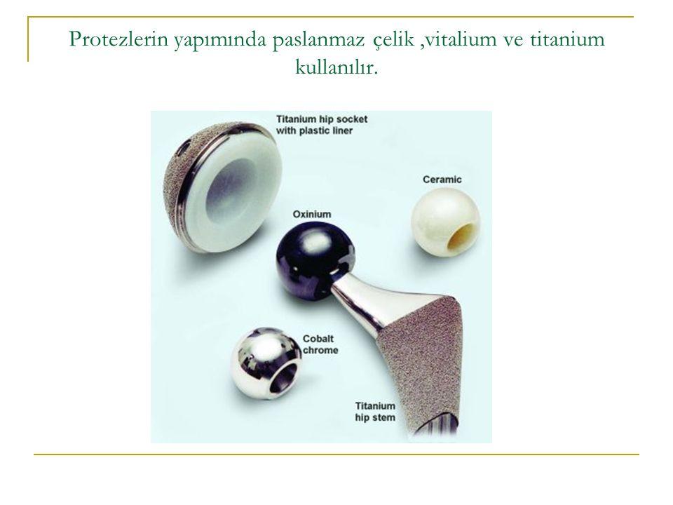 Protezlerin yapımında paslanmaz çelik ,vitalium ve titanium kullanılır.