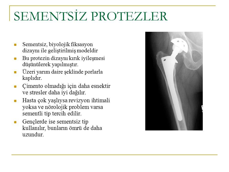 SEMENTSİZ PROTEZLER Sementsiz, biyolojik fiksasyon dizaynı ile geliştirilmiş modeldir. Bu protezin dizaynı kırık iyileşmesi düşünülerek yapılmıştır.