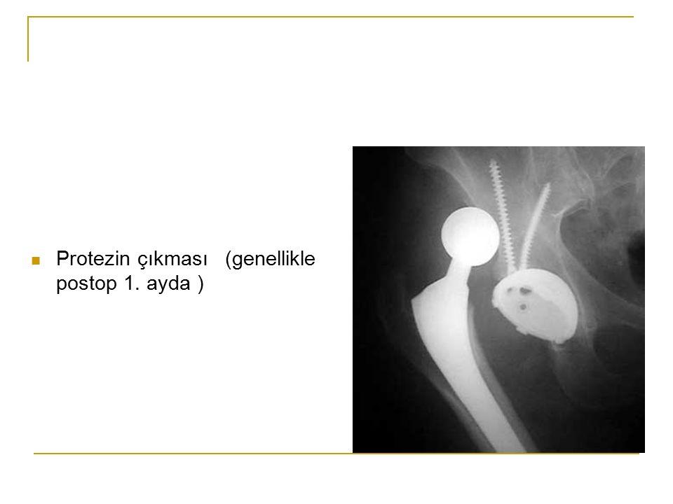 Protezin çıkması (genellikle postop 1. ayda )