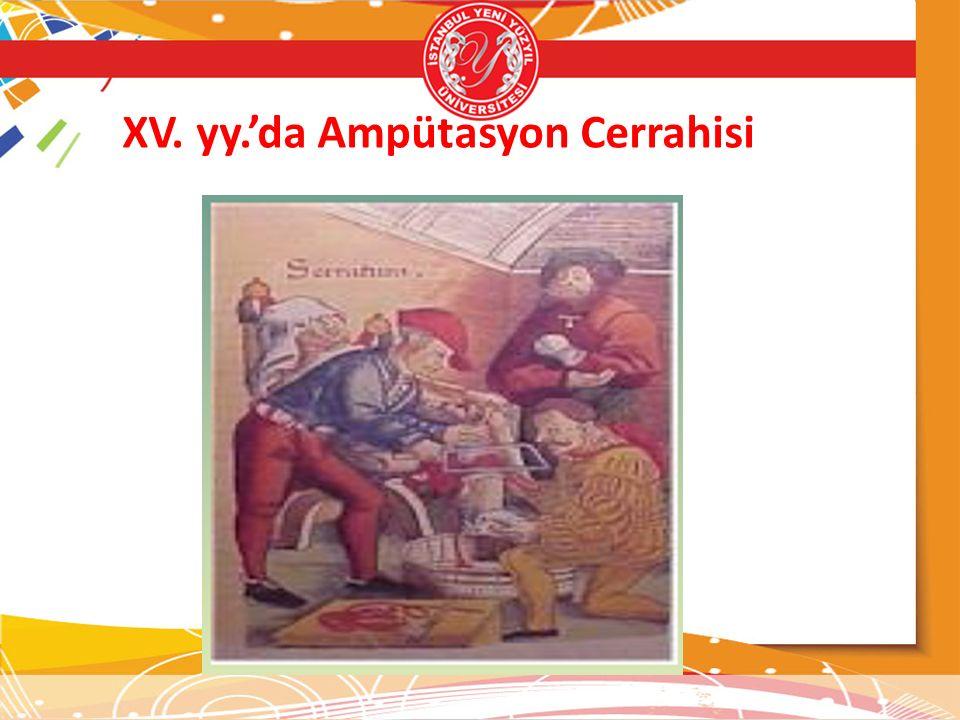 XV. yy.'da Ampütasyon Cerrahisi