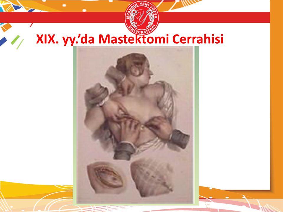 XIX. yy.'da Mastektomi Cerrahisi