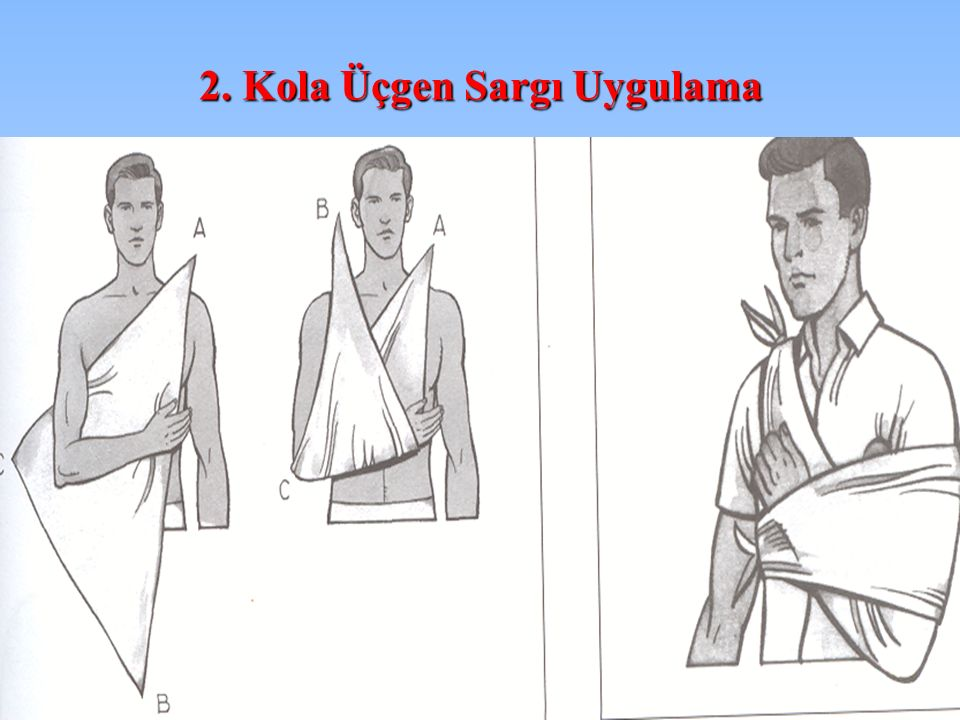2. Kola Üçgen Sargı Uygulama