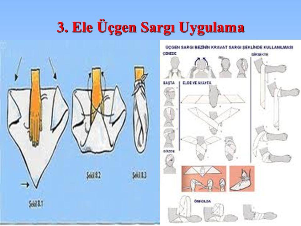 3. Ele Üçgen Sargı Uygulama