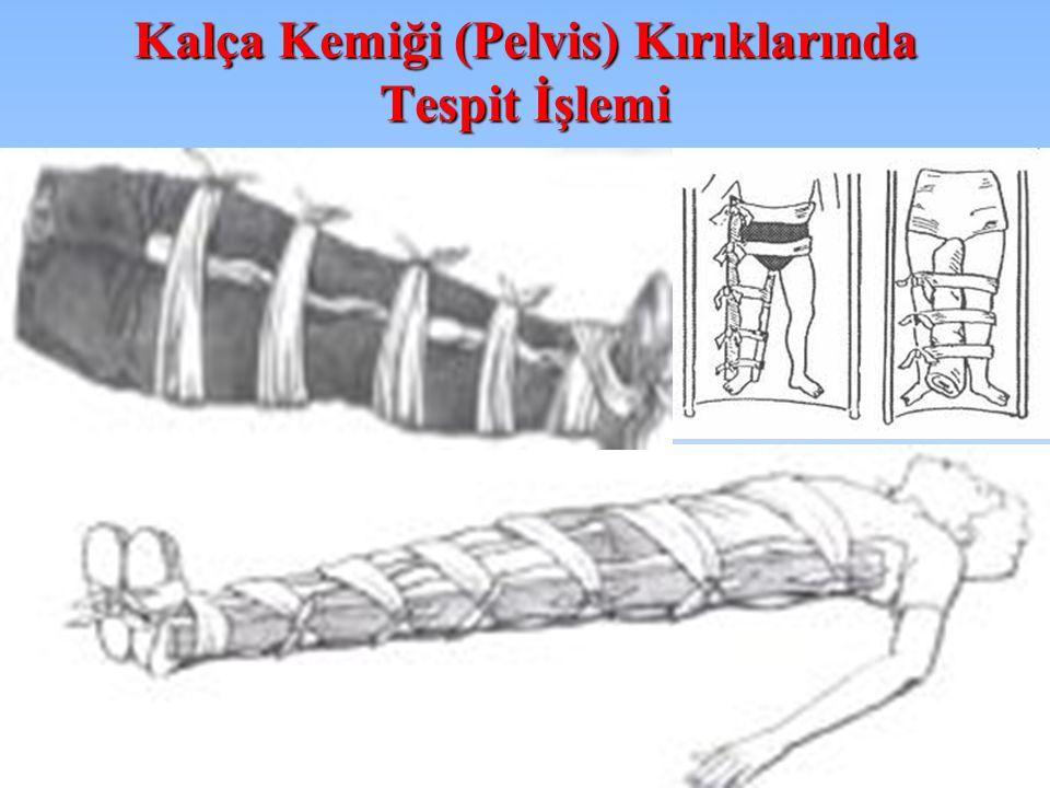 Kalça Kemiği (Pelvis) Kırıklarında Tespit İşlemi