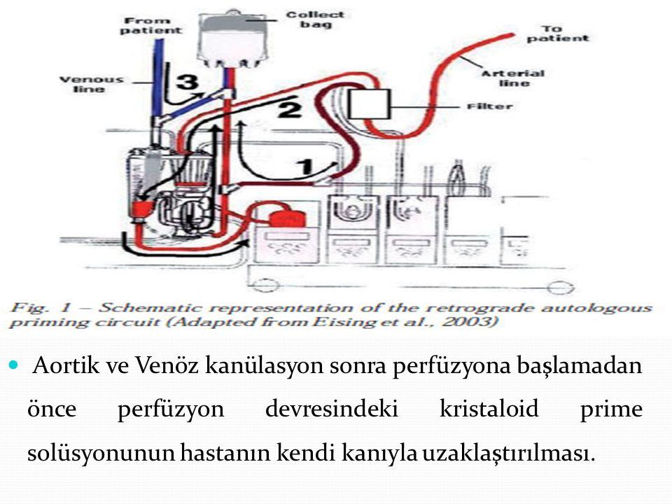 Aortik ve Venöz kanülasyon sonra perfüzyona başlamadan önce perfüzyon devresindeki kristaloid prime solüsyonunun hastanın kendi kanıyla uzaklaştırılması.