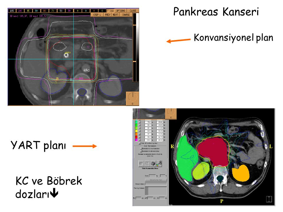 Pankreas Kanseri Konvansiyonel plan YART planı KC ve Böbrek dozları