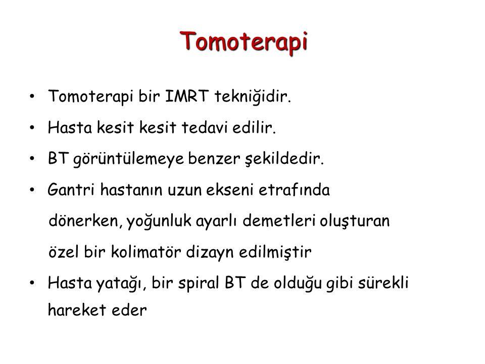 Tomoterapi Tomoterapi bir IMRT tekniğidir.