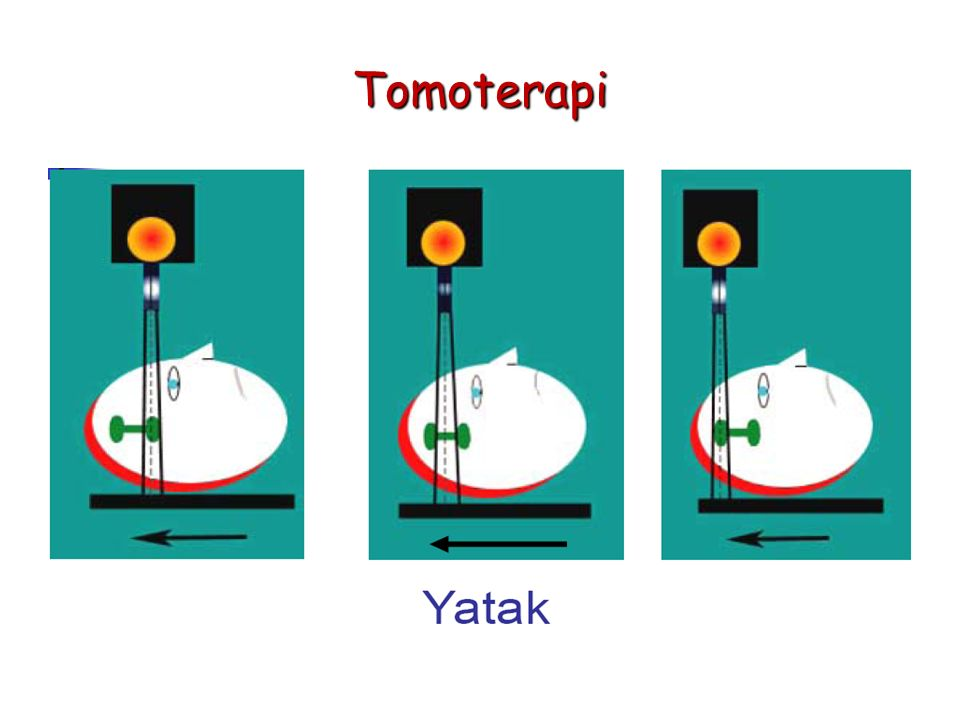Tomoterapi