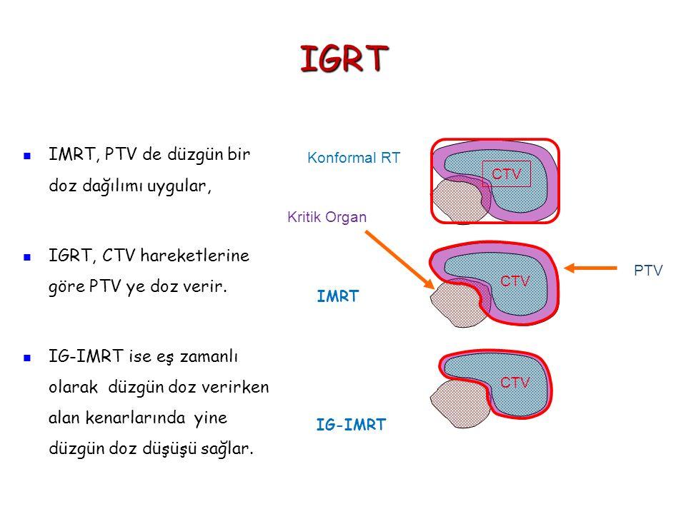 IGRT IMRT, PTV de düzgün bir doz dağılımı uygular,