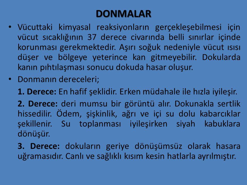 DONMALAR