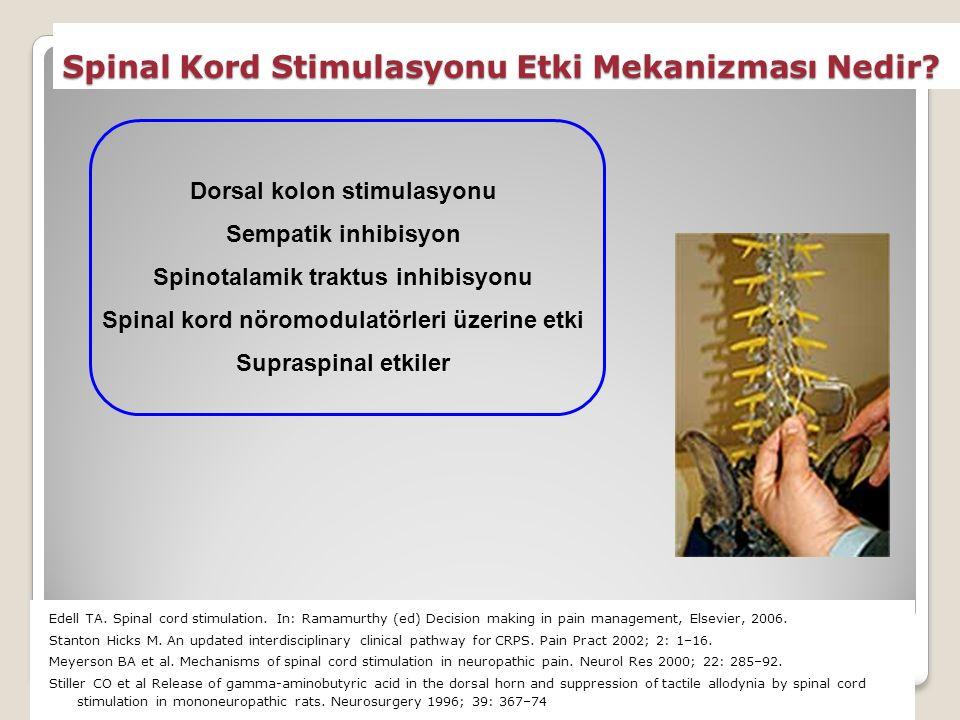 Spinal Kord Stimulasyonu Etki Mekanizması Nedir