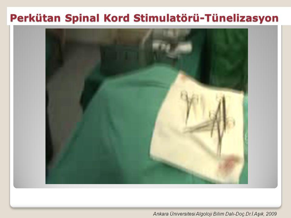 Perkütan Spinal Kord Stimulatörü-Tünelizasyon