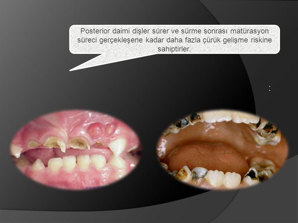 Posterior daimi dişler sürer ve sürme sonrası matürasyon süreci gerçekleşene kadar daha fazla çürük gelişme riskine sahiptirler.