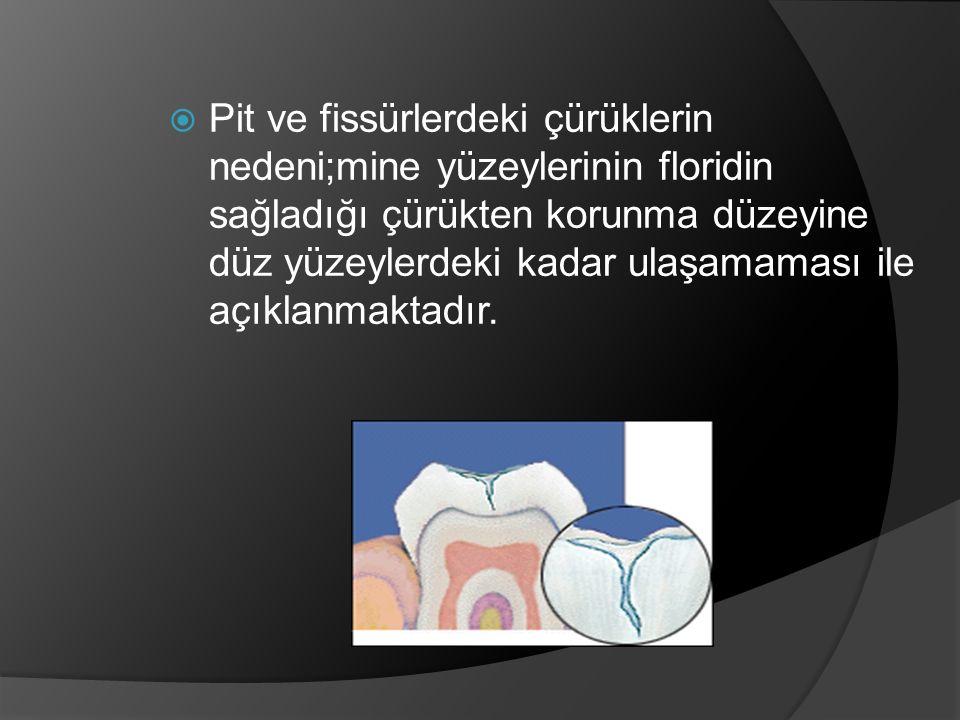 Pit ve fissürlerdeki çürüklerin nedeni;mine yüzeylerinin floridin sağladığı çürükten korunma düzeyine düz yüzeylerdeki kadar ulaşamaması ile açıklanmaktadır.