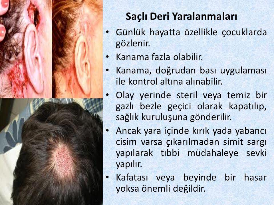 Saçlı Deri Yaralanmaları