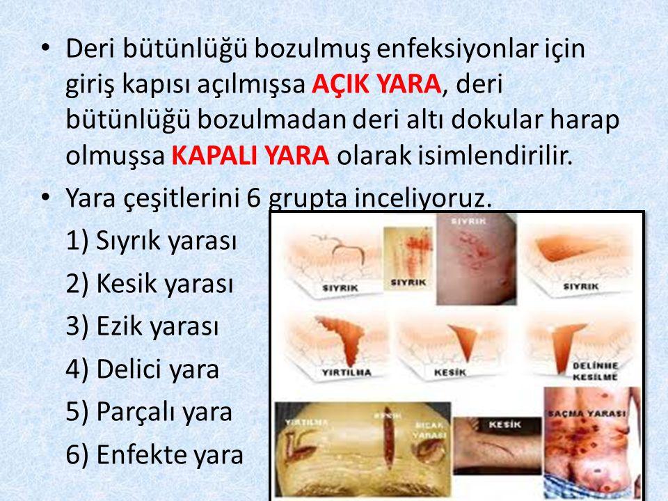 Deri bütünlüğü bozulmuş enfeksiyonlar için giriş kapısı açılmışsa AÇIK YARA, deri bütünlüğü bozulmadan deri altı dokular harap olmuşsa KAPALI YARA olarak isimlendirilir.