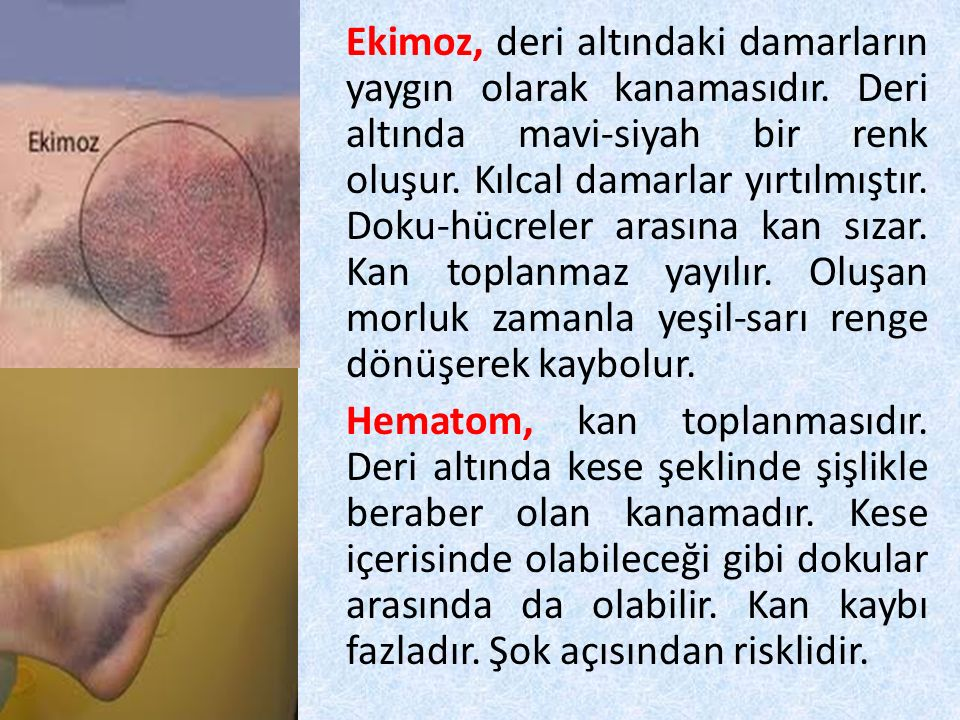 Ekimoz, deri altındaki damarların yaygın olarak kanamasıdır