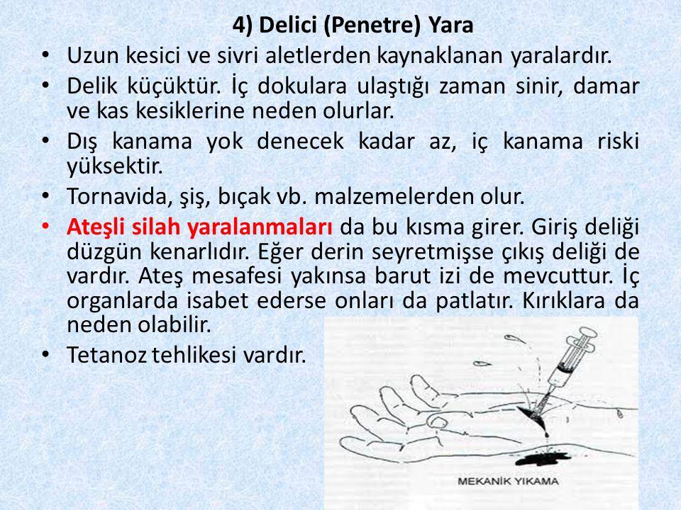 4) Delici (Penetre) Yara