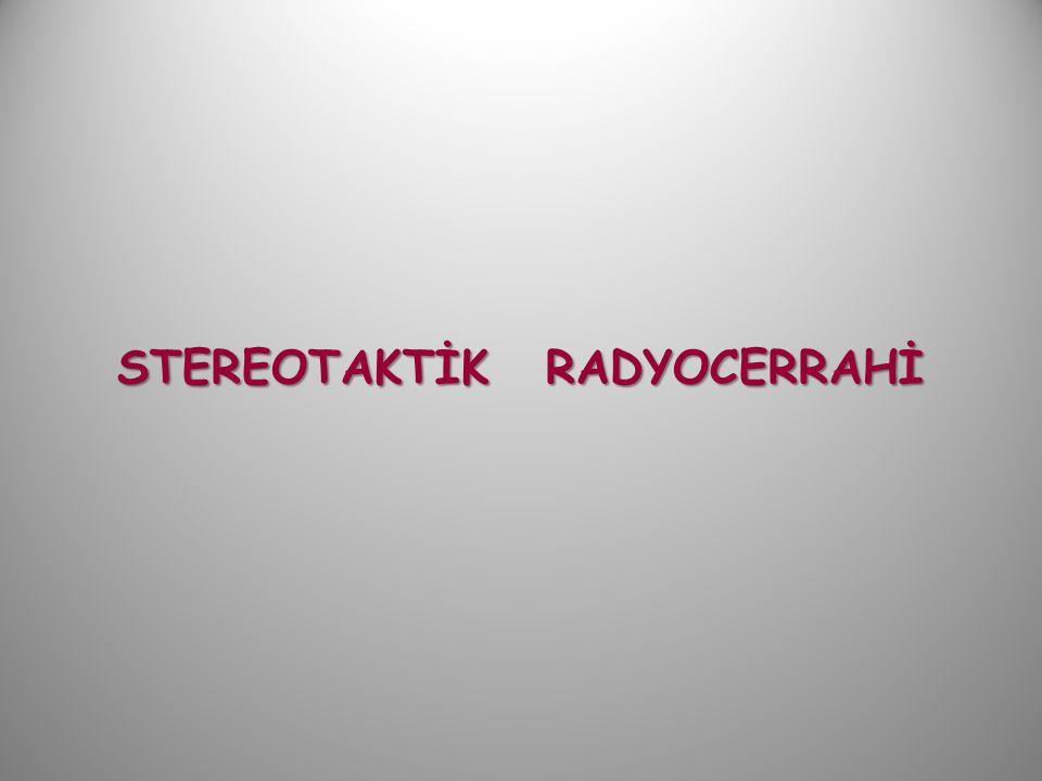 STEREOTAKTİK RADYOCERRAHİ