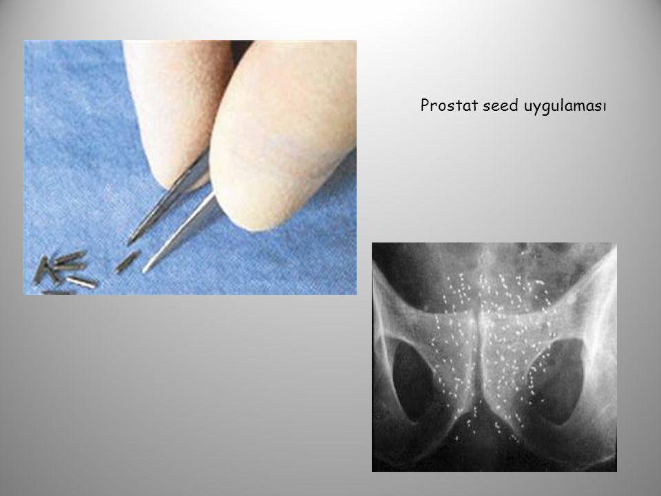 Prostat seed uygulaması