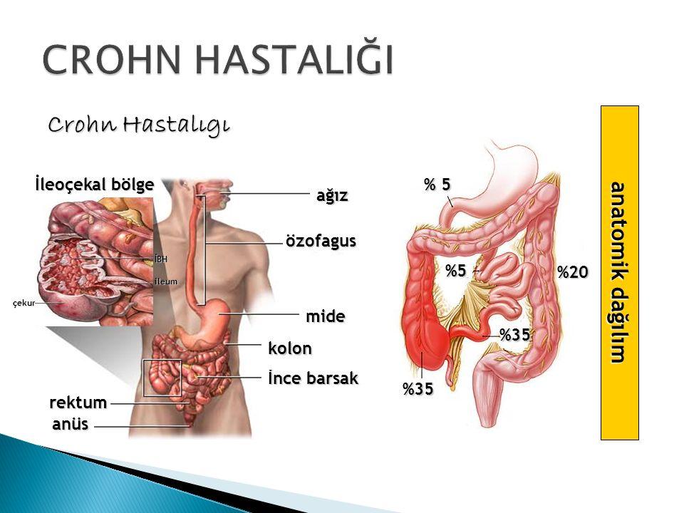 CROHN HASTALIĞI Crohn Hastalıgı anatomik dağılım İleoçekal bölge % 5