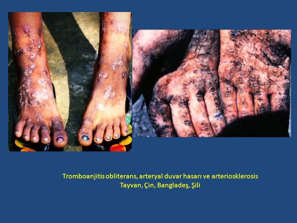 Tromboanjitis obliterans, arteryal duvar hasarı ve arteriosklerosis