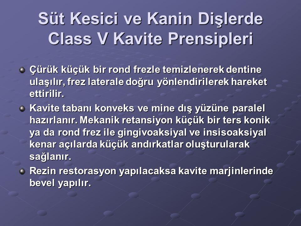 Süt Kesici ve Kanin Dişlerde Class V Kavite Prensipleri