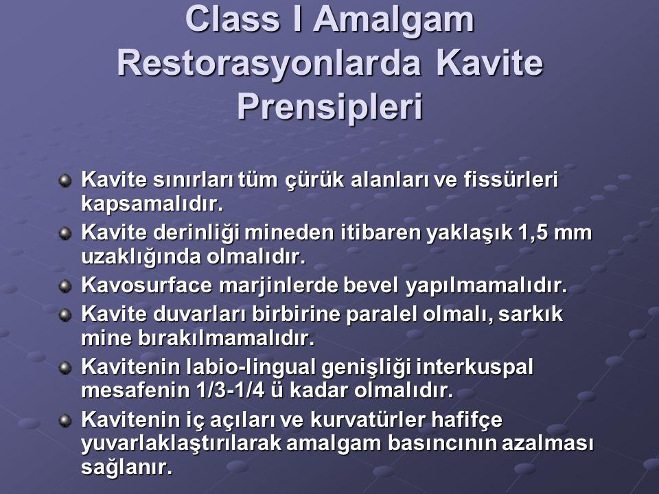 Class I Amalgam Restorasyonlarda Kavite Prensipleri