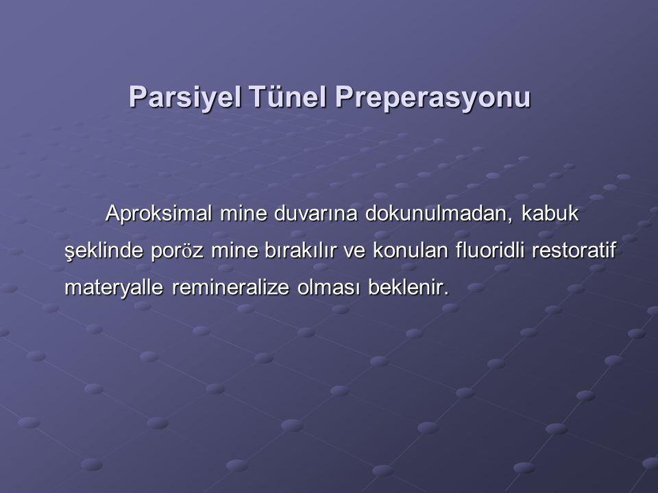 Parsiyel Tünel Preperasyonu