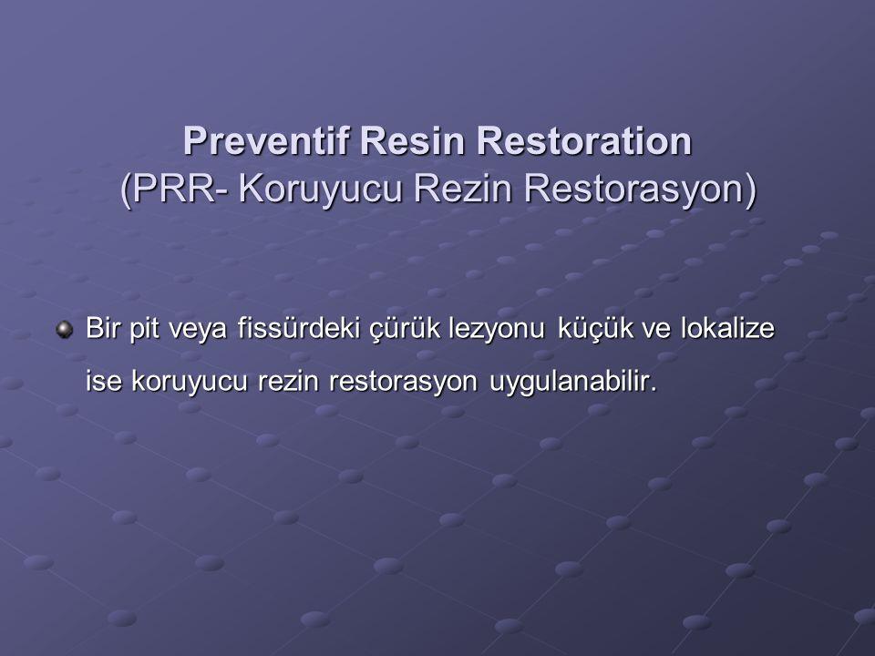 Preventif Resin Restoration (PRR- Koruyucu Rezin Restorasyon)
