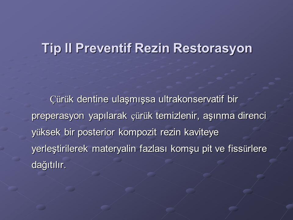 Tip II Preventif Rezin Restorasyon