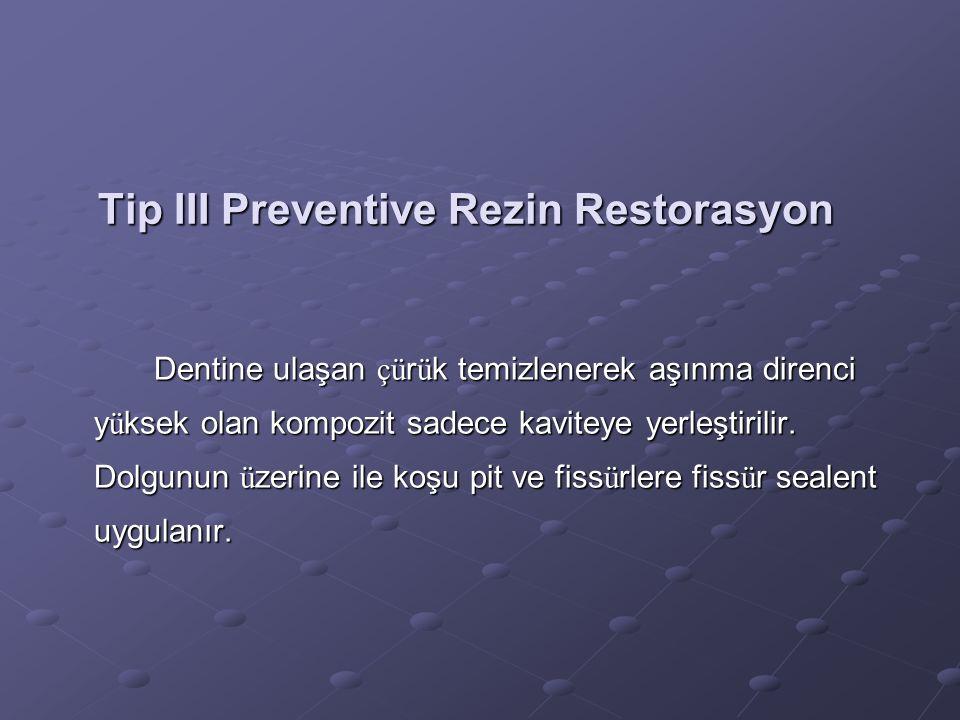 Tip III Preventive Rezin Restorasyon