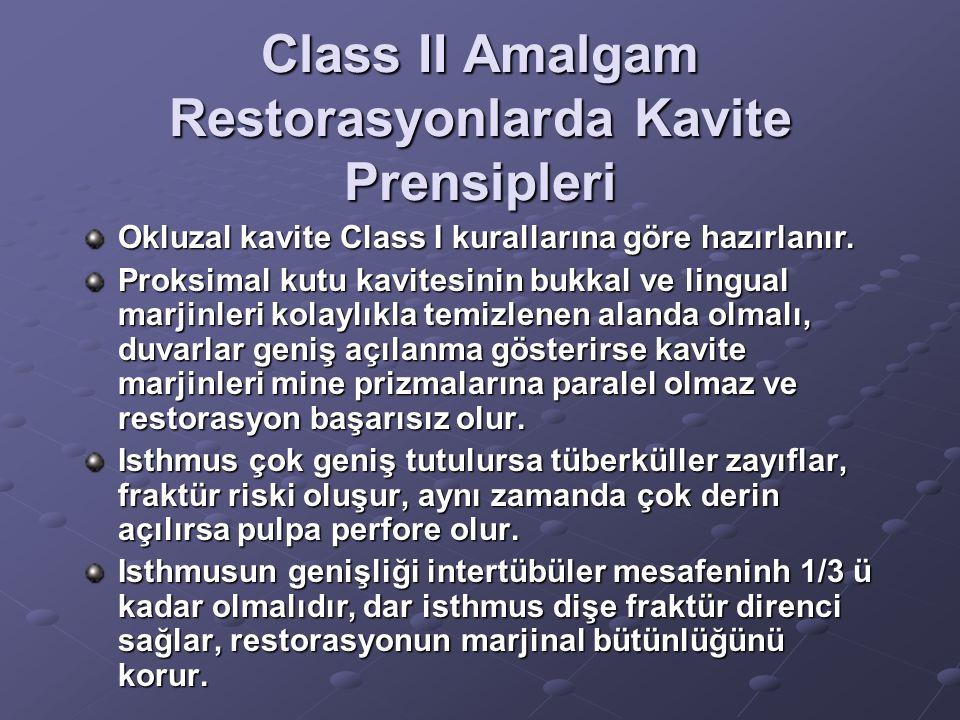Class II Amalgam Restorasyonlarda Kavite Prensipleri