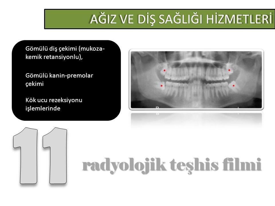 11 radyolojik teşhis filmi AĞIZ VE DİŞ SAĞLIĞI HİZMETLERİ
