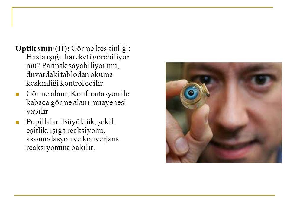 Optik sinir (II): Görme keskinliği; Hasta ışığı, hareketi görebiliyor mu Parmak sayabiliyor mu, duvardaki tablodan okuma keskinliği kontrol edilir