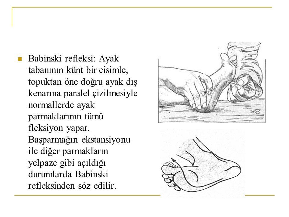 Babinski refleksi: Ayak tabanının künt bir cisimle, topuktan öne doğru ayak dış kenarına paralel çizilmesiyle normallerde ayak parmaklarının tümü fleksiyon yapar.