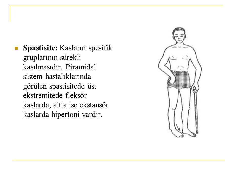 Spastisite: Kasların spesifik gruplarının sürekli kasılmasıdır