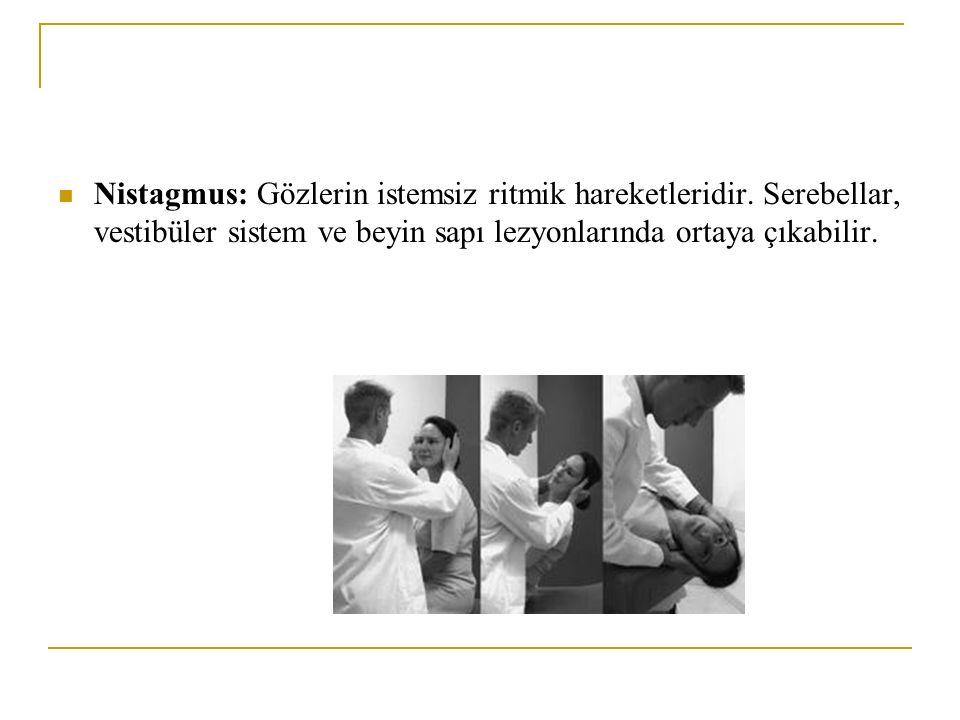 Nistagmus: Gözlerin istemsiz ritmik hareketleridir