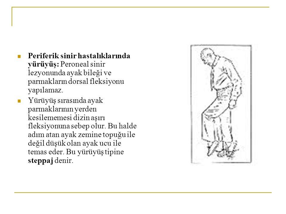 Periferik sinir hastalıklarında yürüyüş: Peroneal sinir lezyonunda ayak bileği ve parmakların dorsal fleksiyonu yapılamaz.