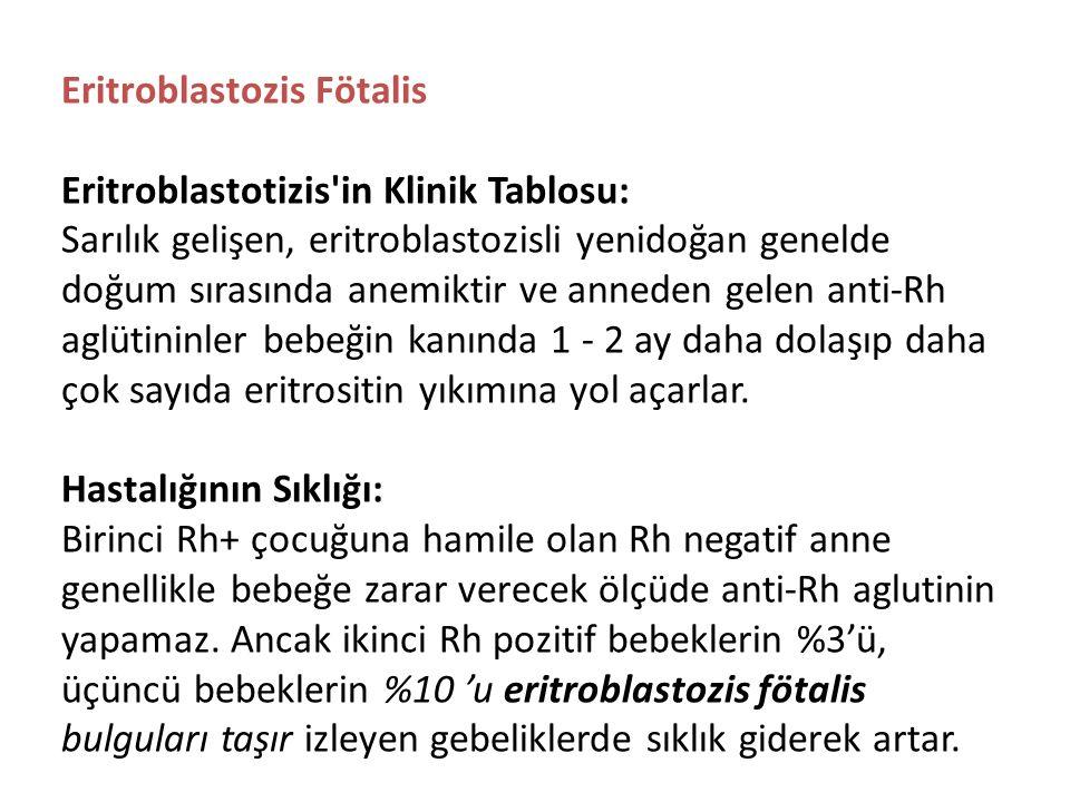 Eritroblastozis Fötalis