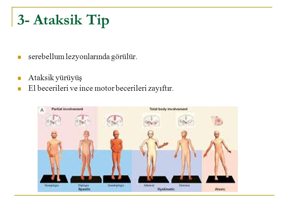 3- Ataksik Tip serebellum lezyonlarında görülür. Ataksik yürüyüş