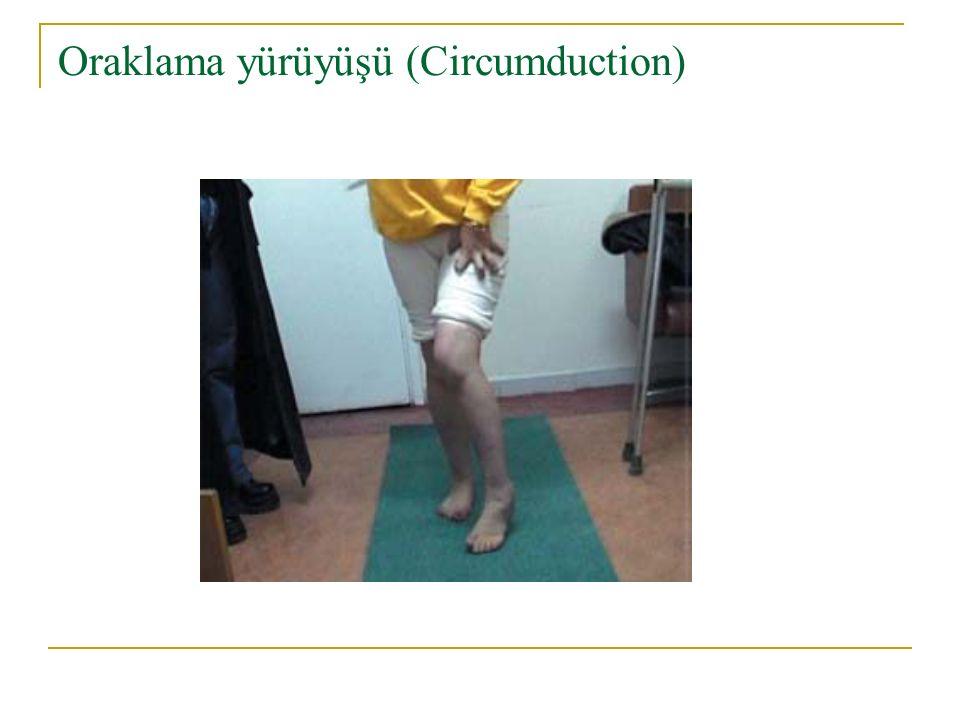 Oraklama yürüyüşü (Circumduction)