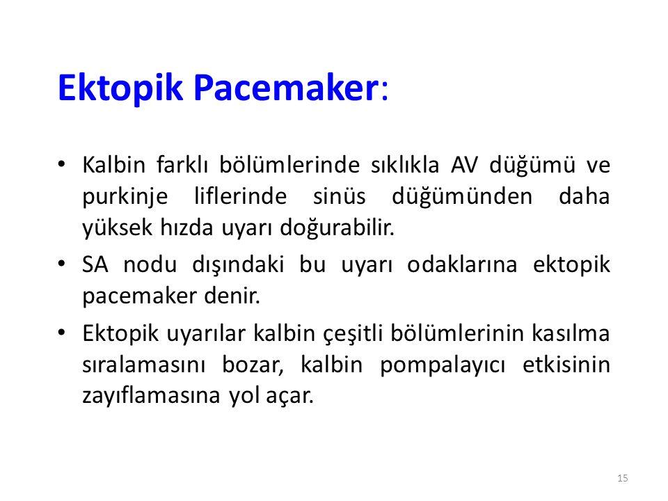 Ektopik Pacemaker: Kalbin farklı bölümlerinde sıklıkla AV düğümü ve purkinje liflerinde sinüs düğümünden daha yüksek hızda uyarı doğurabilir.