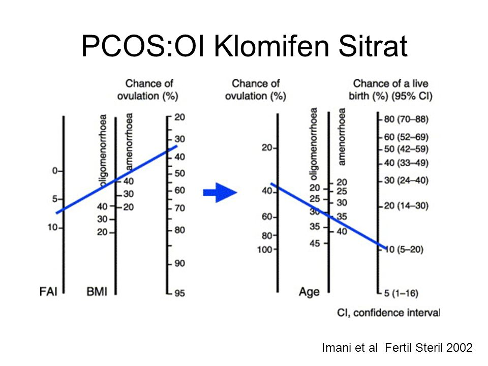 PCOS:OI Klomifen Sitrat