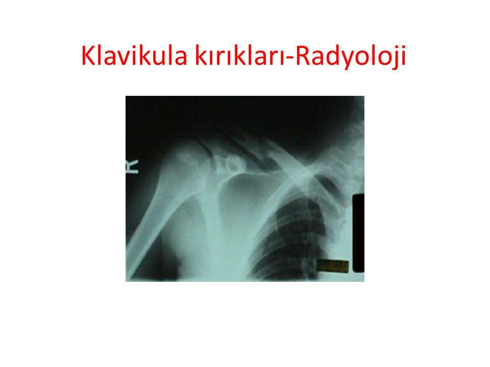 Klavikula kırıkları-Radyoloji