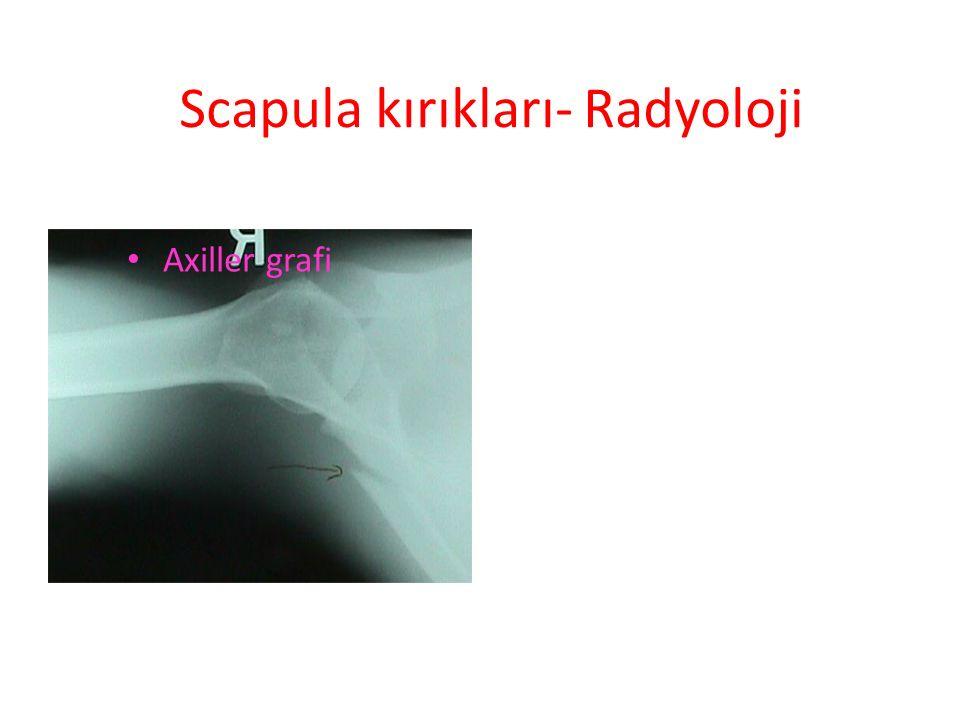 Scapula kırıkları- Radyoloji