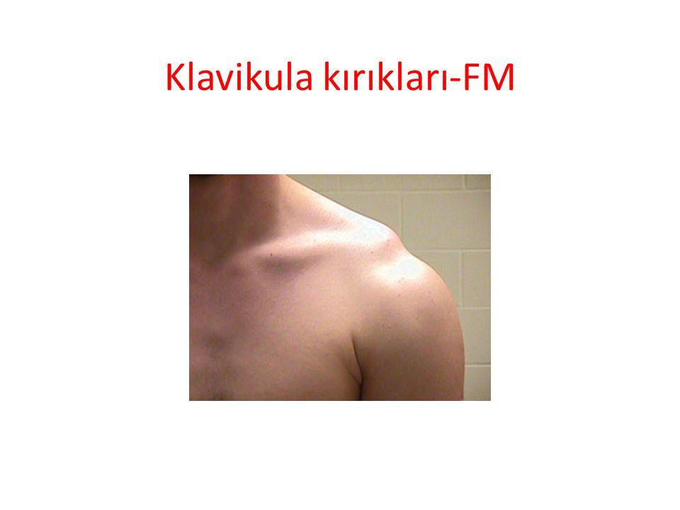 Klavikula kırıkları-FM