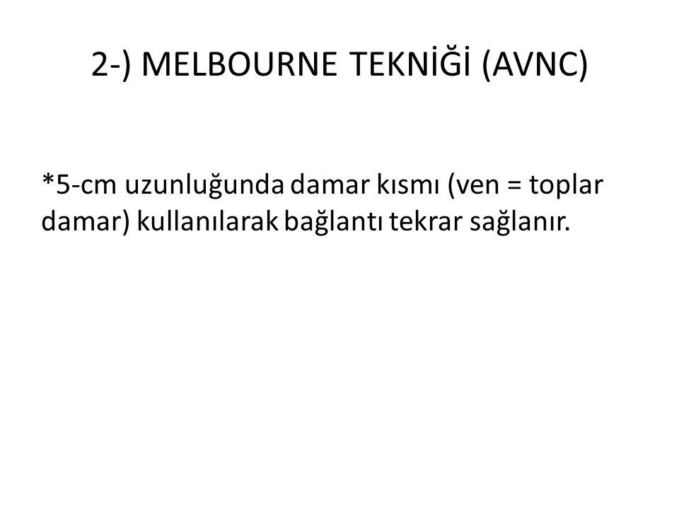 2-) MELBOURNE TEKNİĞİ (AVNC)