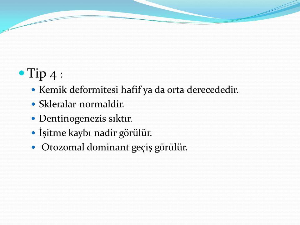 Tip 4 : Kemik deformitesi hafif ya da orta derecededir.
