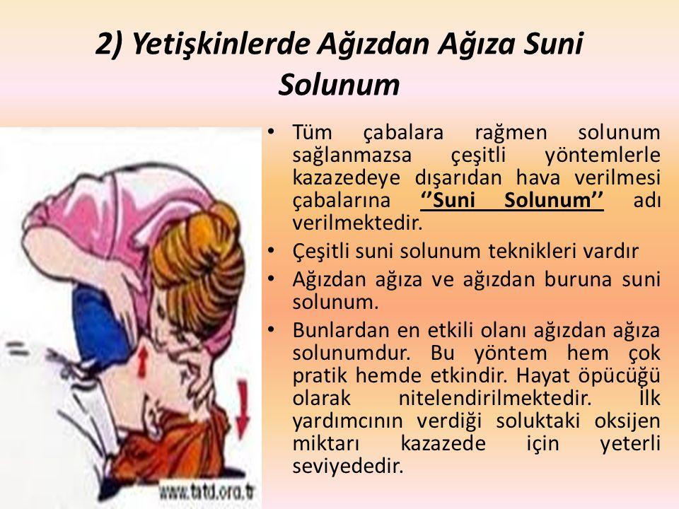 2) Yetişkinlerde Ağızdan Ağıza Suni Solunum